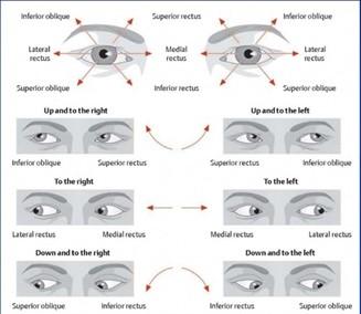 sløret syn på det ene øje